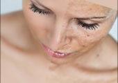 Отшелушивание кожи, как средство для ее омоложения